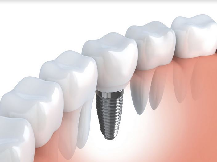 Czy implanty stomatologiczne są bezpieczne dla zdrowia?